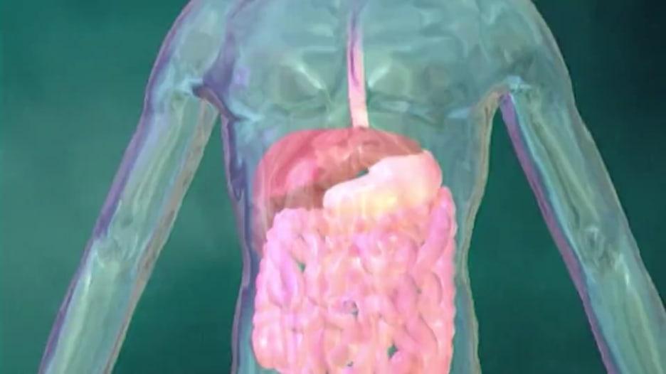 كيف تقلّل أعراض التهاب الكبد C من خلال الطعام؟