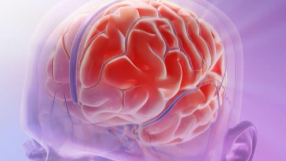 هل يزيل هذا الدواء الجديد معاناة المصابين بالصداع النصفي؟