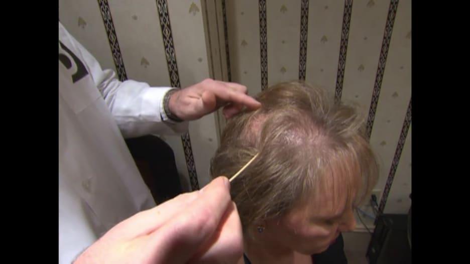 قد يشكل صدمة للبعض.. ما العلاقة بين تساقط الشعر والهرمونات؟