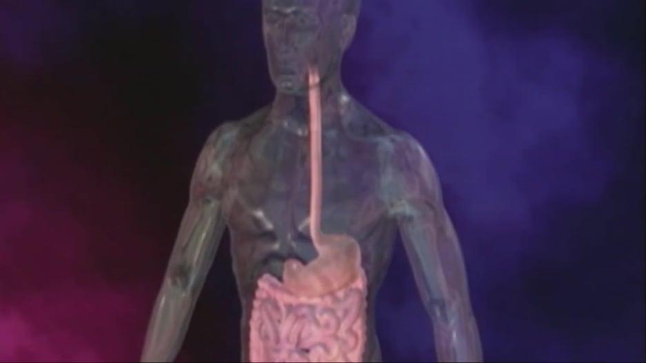 8 أطعمة قد تسبب حرقة المعدة
