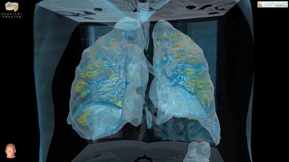 شاهد كيف تبدو رئة مصاب بفيروس كورونا وما يحصل داخلها