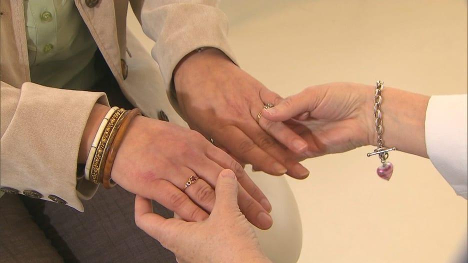 6 حالات صحية تؤثر على الجلد