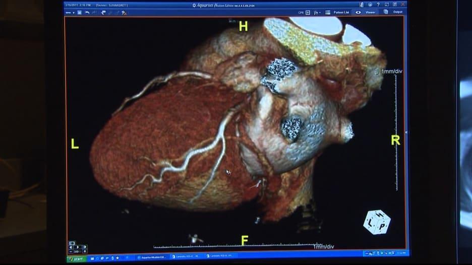 مؤشر من القلب يُنذر بمصابي كورونا الأكثر عرضة للوفاة