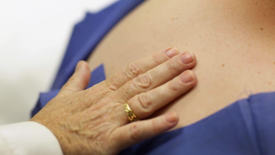 سرطان الجلد.. أنواعه وطرق الوقاية منه