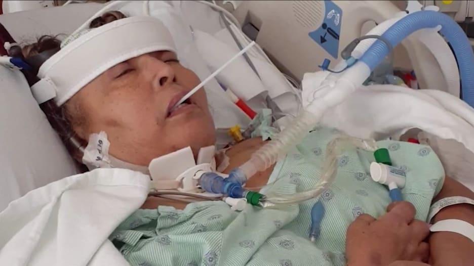 كادت تفقد قدمها.. امرأة ستينية تمضي 6 أشهر في مكافحة كورونا