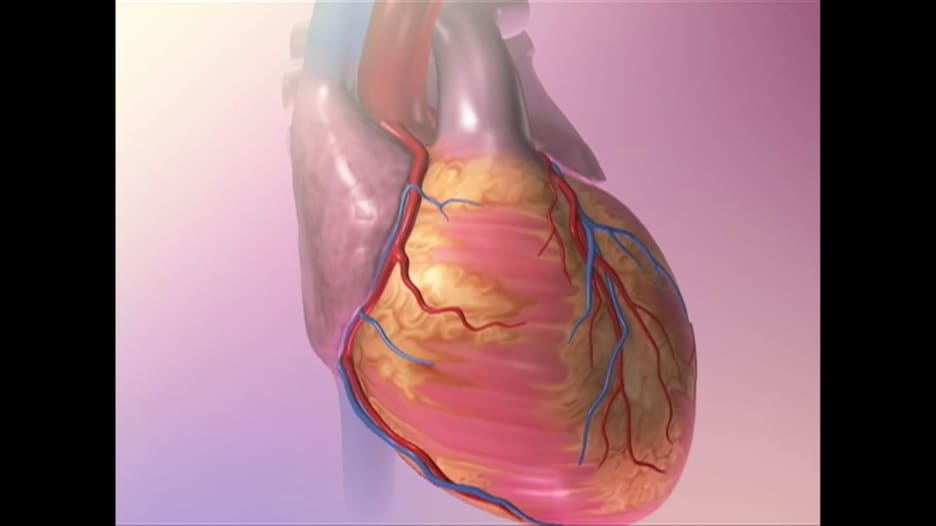 كيف يمكن الحد من السوائل في حالة قصور القلب؟