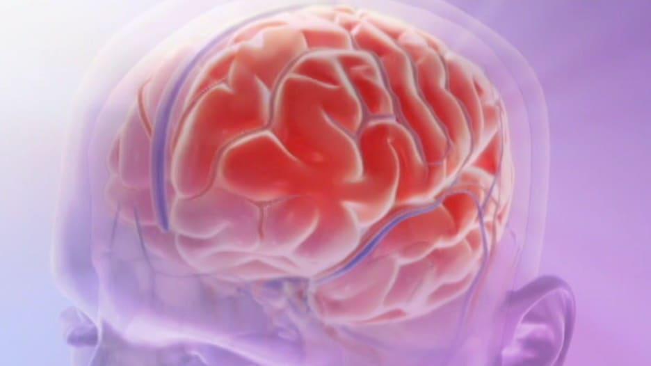 """""""قاتل صامت"""" ربما لم تسمع به من قبل.. معرفة أعراض تمدد الأوعية الدموية في الدماغ يمكن أن ينقذ حياتك"""