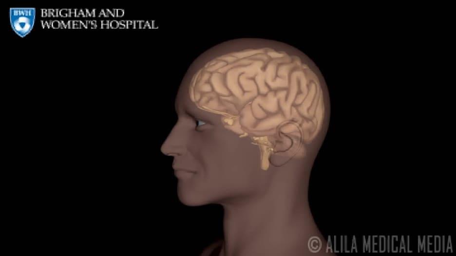 تستمر لبضع دقائق فقط لكنها علامة حمراء للسكتات الدماغية المستقبلية.. ما هي النوبات الإقفارية العابرة؟