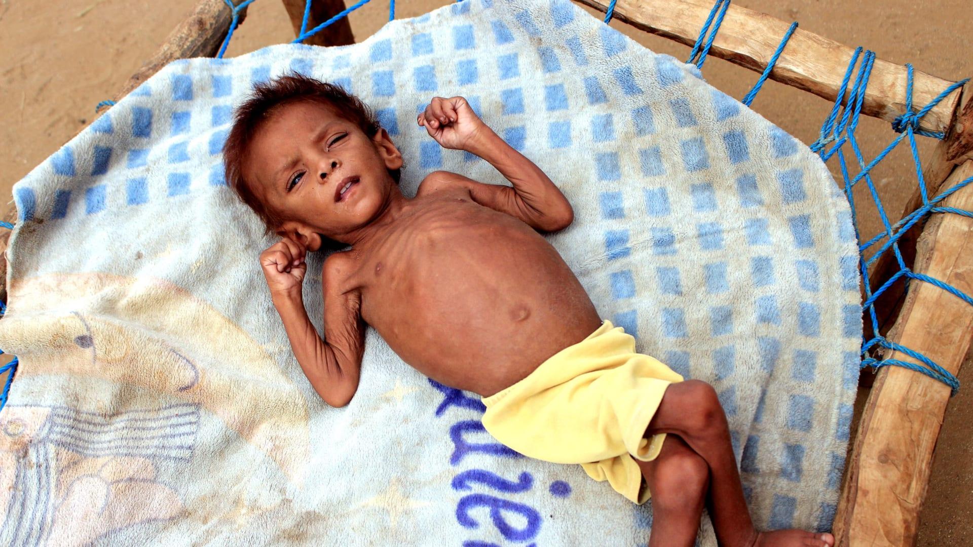 famine-world